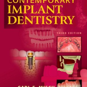 Contemporary-Implant-Dentistry-3e-0